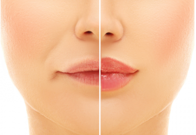 Fillers & Botox - What's The Difference?