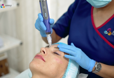 Microneedling: Everything You Need To Know About Dermapen