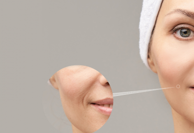 Profhilo, fillers, and Botox: What is the difference?